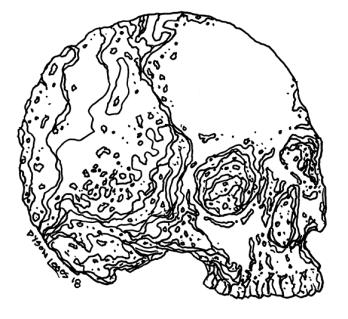 058 - Skull Variations 4 150